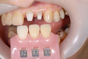 港南台パーク歯科クリニック|医院ブログ症例|【症例】ジルコニアセラミック+ファイバーコアによる審美治療|シェードテイキングの画像-画像3