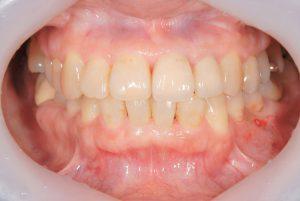港南台パーク歯科クリニック|医院ブログ症例|【症例】ジルコニアセラミック+ファイバーコアによる審美治療|治療後の画像-画像5