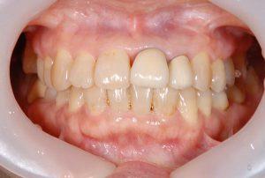 港南台パーク歯科クリニック|医院ブログ症例|【症例】ジルコニアセラミック+ファイバーコアによる審美治療|治療前の画像-画像1