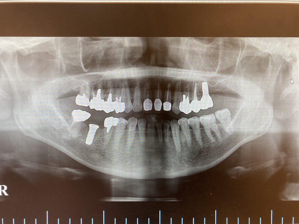 左上奥歯の根管治療及びインプラント治療の症例 ジルコニアでできた上部構造(被せ物)をセット後のレントゲン画像  港南台の歯医者 港南台パーク歯科クリニック