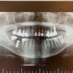 【症例】左上奥歯の根管治療及びインプラント治療