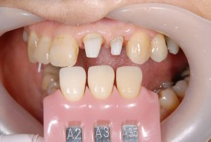 港南台パーク歯科クリニック|医院ブログ症例|【症例】ジルコニアセラミック+ファイバーコアによる審美治療|シェードテイキングの画像-画像4