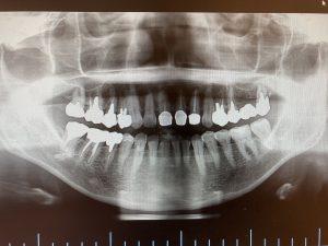 左上奥歯の根管治療及びインプラント治療の症例 左上7番目の歯の根が膿んでいることが疑われレントゲン画像  港南台の歯医者 港南台パーク歯科クリニック