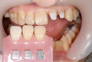 港南台パーク歯科クリニック|医院ブログ症例|【症例】ジルコニアセラミック+ファイバーコアによる審美治療|シェードテイキングの画像-画像2
