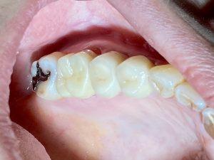 港南台の歯医者|港南台パーク歯科クリニック|【症例】右上奥歯のジルコニア修復(一般的なむし歯治療の流れ)|歯科用ボンドでセットした後の画像10