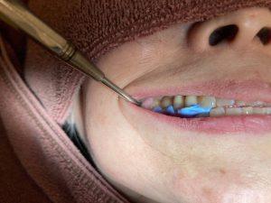 港南台の歯医者|港南台パーク歯科クリニック|【症例】右上奥歯のジルコニア修復(一般的なむし歯治療の流れ)|シリコンでかみ合わせの記録を取っている画像7