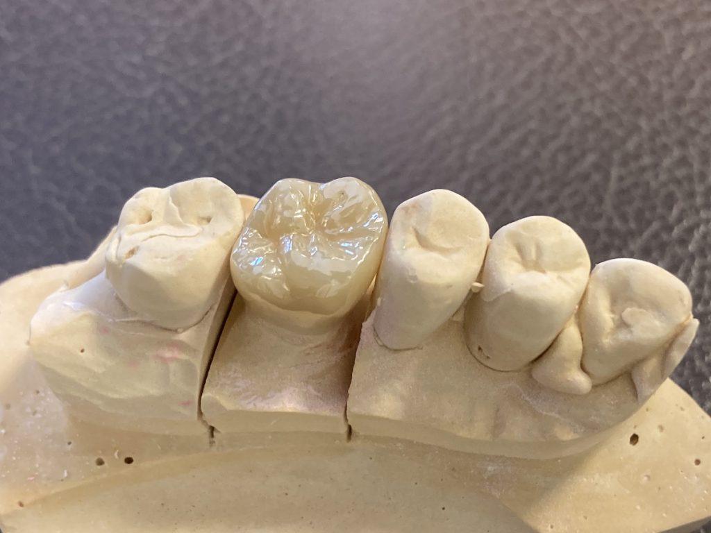 港南台の歯医者|港南台パーク歯科クリニック|【症例】右上奥歯のジルコニア修復(一般的なむし歯治療の流れ)|ジルコニアクラウン の画像9