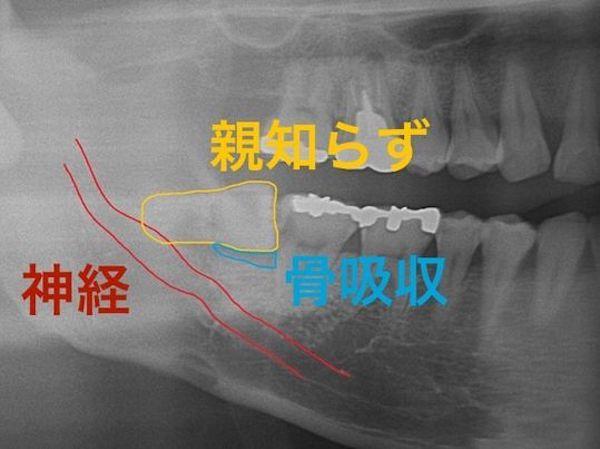 港南台の歯医者|港南台パーク歯科クリニック|【症例】右下親知らず抜歯の治療|治療前の歯のレントゲン画像1