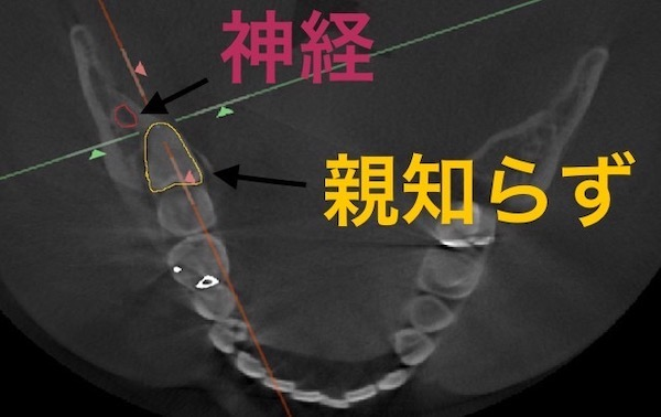 港南台の歯医者|港南台パーク歯科クリニック|【症例】右下親知らず抜歯の治療|治療前に歯科用CTで上から撮影した画像4