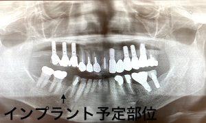 港南台の歯医者|港南台パーク歯科クリニック|【症例】他院から依頼されたインプラント治療|治療前の歯の画像1