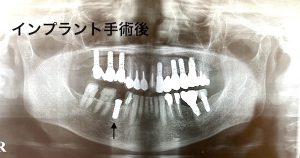 港南台の歯医者|港南台パーク歯科クリニック|【症例】他院から依頼されたインプラント治療|インプラント治療後の歯の画像6
