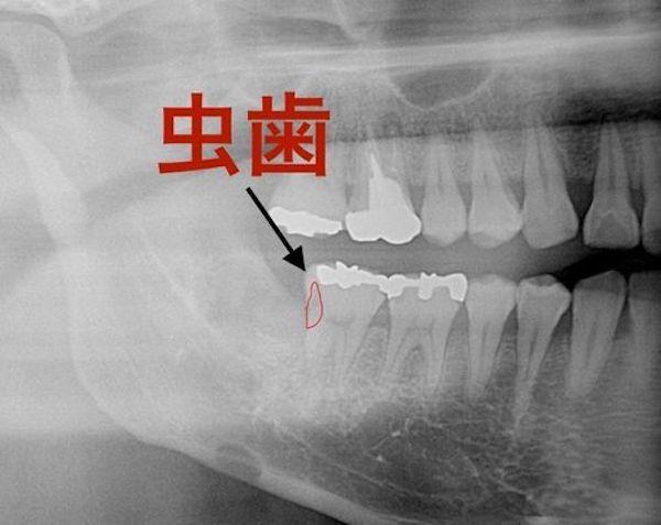 港南台の歯医者|港南台パーク歯科クリニック|【症例】右下親知らず抜歯の治療|虫歯が確認できるレントゲン画像5