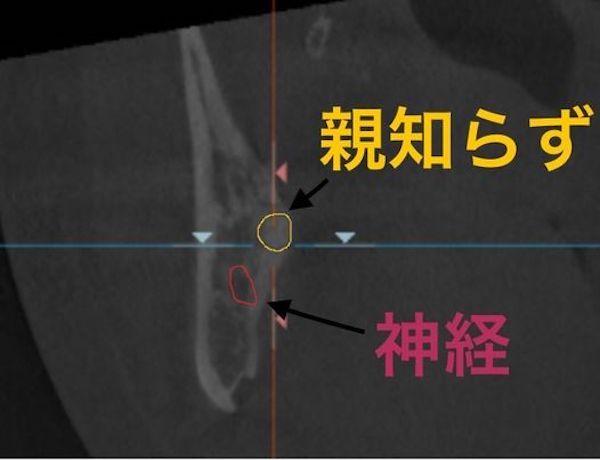 港南台の歯医者|港南台パーク歯科クリニック|【症例】右下親知らず抜歯の治療|治療前に歯科用CTで撮影した画像2