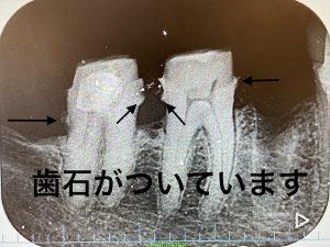 港南台の歯医者|港南台パーク歯科クリニック|【症例】他院から依頼されたインプラント治療|SRP後の歯の画像3