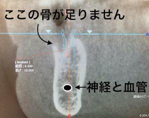港南台の歯医者|港南台パーク歯科クリニック|【症例】他院から依頼されたインプラント治療|歯科用CTで撮影した歯の画像4