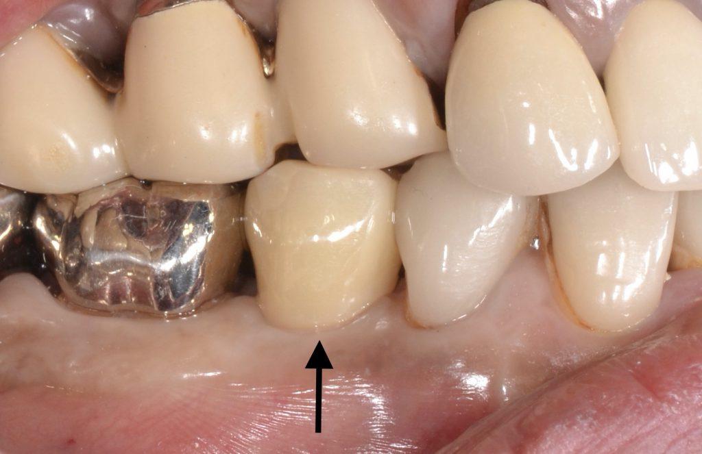 港南台の歯医者|港南台パーク歯科クリニック|【症例】他院から依頼されたインプラント治療|治療後の経過観察時の歯の画像12