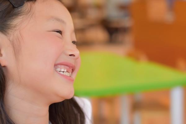 港南台の歯医者 港南台パーク歯科クリニック 「先天性欠如歯」は早期発見が大切派を見せて笑う子どもの画像