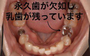 港南台の歯医者 港南台パーク歯科クリニック 「先天性欠如歯」は早期発見が大切 先天性欠如歯の口腔内写真