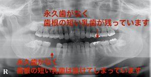 港南台の歯医者 港南台パーク歯科クリニック 「先天性欠如歯」は早期発見が大切 先天性欠如歯のレントゲン画像