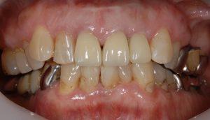 港南台パーク歯科クリニック ブログ 【症例】セラミッククラウン(e.max)による審美治療 セラミッククラウン(e.max)セット後の画像_5