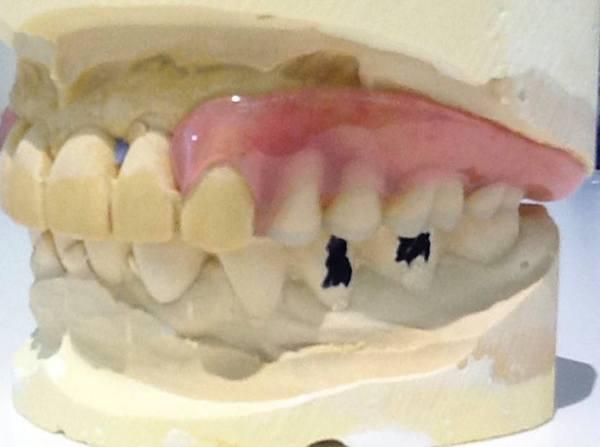 港南台パーク歯科クリニック|院長ブログ|【症例】見た目の良い入れ歯|治療詳細の歯の画像3