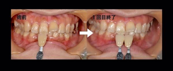 港南台パーク歯科クリニック 院長ブログ 【症例】オフィスホワイトニング 術前と1回目終了時の歯の比較画像