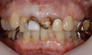 港南台パーク歯科クリニック ブログ 【症例】セラミッククラウン(e.max)による審美治療 治療前の画像_1