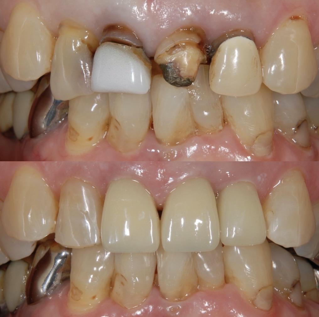 港南台の歯医者 港南台パーク歯科クリニック 【症例】セラミッククラウン(e.max)による審美治療 治療前・治療後の比較写真