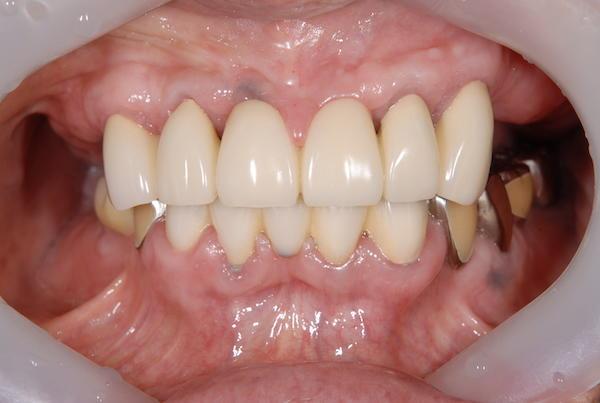 港南台パーク歯科クリニック|院長ブログ|【症例】見た目の良い入れ歯|治療前の歯の画像1