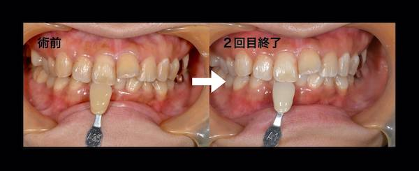 港南台パーク歯科クリニック 院長ブログ 【症例】オフィスホワイトニング 術前と2回目終了時の歯の比較画像