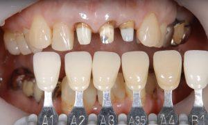 港南台パーク歯科クリニック ブログ 【症例】セラミッククラウン(e.max)による審美治療 セラミッククラウン(e.max)の色合わせの画像_4