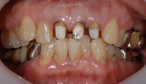 港南台パーク歯科クリニック ブログ 【症例】セラミッククラウン(e.max)による審美治療 前歯の被せ物を除去・修復した画像_2