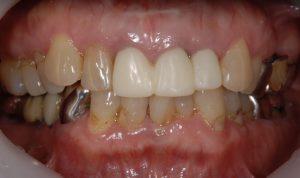 港南台パーク歯科クリニック ブログ 【症例】セラミッククラウン(e.max)による審美治療 前歯に仮歯を設置した画像_3