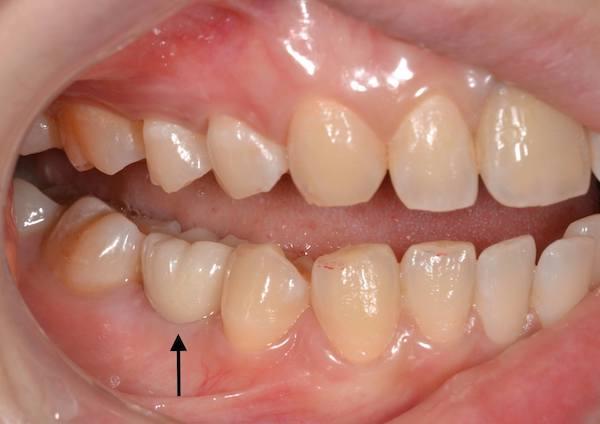 港南台パーク歯科クリニック ブログ 【症例】先天性欠如歯に対するインプラント治療・ジルコニア修復 先天性欠如歯の治療後の前歯部の画像_5