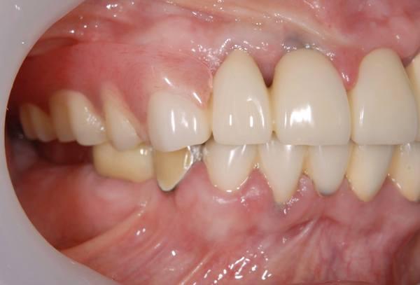 港南台パーク歯科クリニック|院長ブログ|【症例】見た目の良い入れ歯|治療詳細の歯の画像5