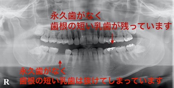 港南台パーク歯科クリニック ブログ 【症例】先天性欠如歯に対するインプラント治療・ジルコニア修復 治療前のレントゲン画像_1