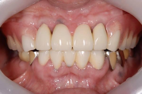 港南台パーク歯科クリニック 院長ブログ 【症例】見た目の良い入れ歯 治療詳細の歯の画像4