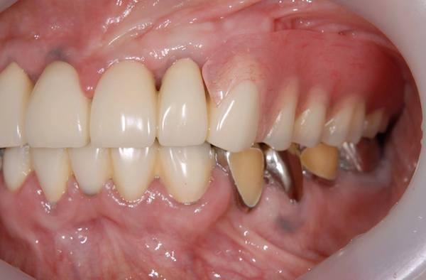 港南台パーク歯科クリニック|院長ブログ|【症例】見た目の良い入れ歯|治療詳細の歯の画像6