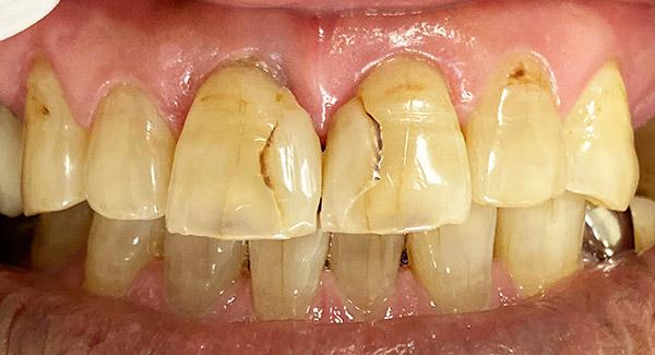港南台パーク歯科クリニック|院長ブログ|【症例】古くなったコンポジットレジン(樹脂の詰め物)の修正|治療前の歯の画像1