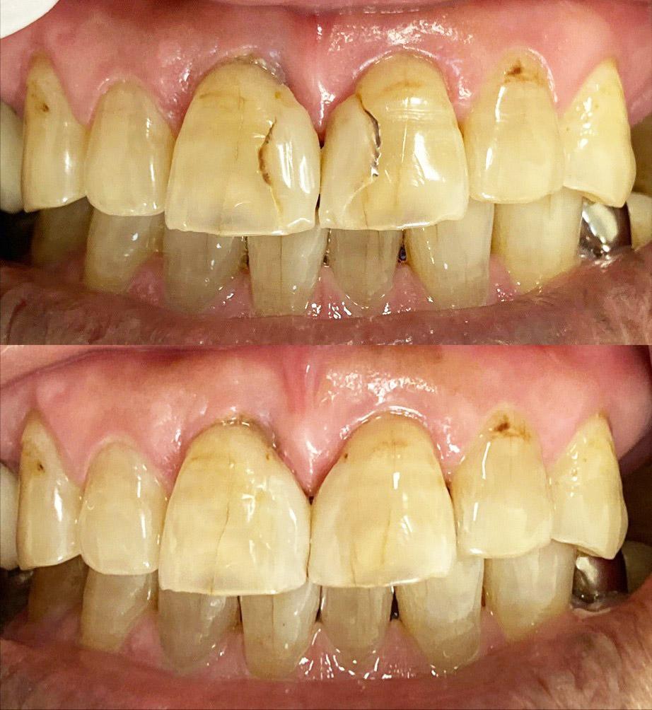 港南台パーク歯科クリニック|院長ブログ|【症例】古くなったコンポジットレジン(樹脂の詰め物)の修正|治療前後の歯の比較画像3