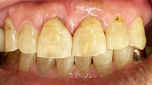 港南台パーク歯科クリニック|院長ブログ|【症例】古くなったコンポジットレジン(樹脂の詰め物)の修正|治療後の歯の画像2