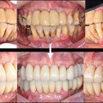 【症例】歯周病に対するインプラント治療
