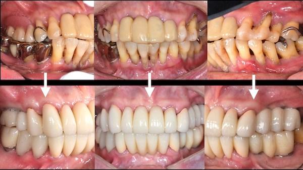 港南台パーク歯科クリニック 症例 【症例】歯周病に対するインプラント治療 治療前後の比較メイン画像-1