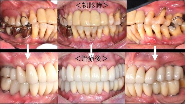 港南台パーク歯科クリニック 症例 【症例】歯周病に対するインプラント治療 治療前後の前歯の比較画像-4
