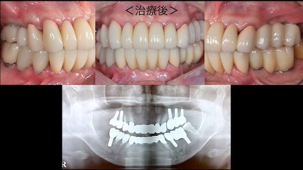 港南台パーク歯科クリニック 症例 【症例】歯周病に対するインプラント治療 治療後の歯の写真とレントゲン画像-3