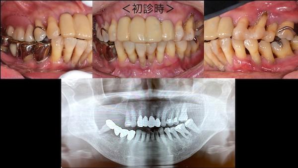 港南台パーク歯科クリニック 症例 【症例】歯周病に対するインプラント治療 初診時の歯の写真とレントゲン画像-2